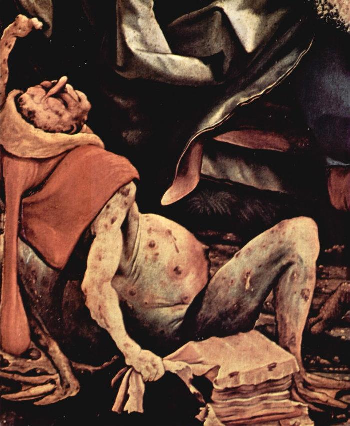 Mathis Grünewald ergotism 1512-16