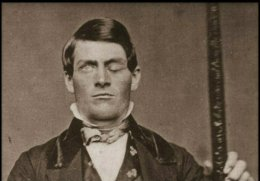 The Amazing Story of Phineas Gage's Brain, 1848.
